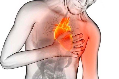codigo-infarto